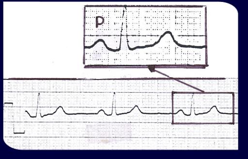 Analisi morfologica dell'onda P